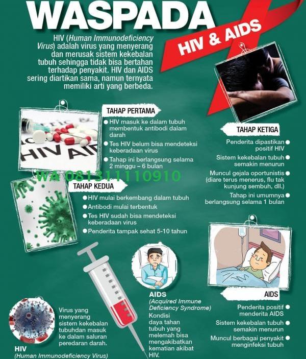 cara mengobati hiv