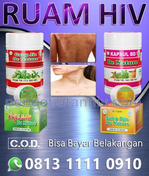 Obat Hiv Aids Herbal Untuk Ruam Merah Gatal Muncul Di Kulit Tangan Leher Badan Muka