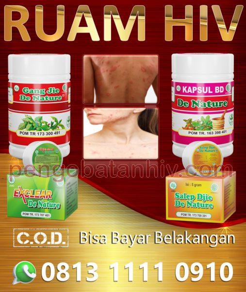 Obat Hiv Aids Herbal Untuk Ruam Merah Gatal Muncul Di Kulit Tangan Leher Badan Wajah Ampuh