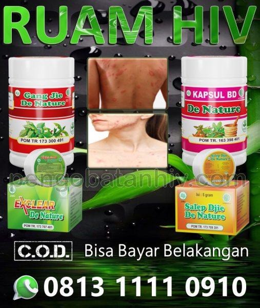 Obat Hiv Aids Herbal Untuk Ruam Merah Gatal Muncul Di Kulit Tangan Leher Badan Wajah Di Apotik