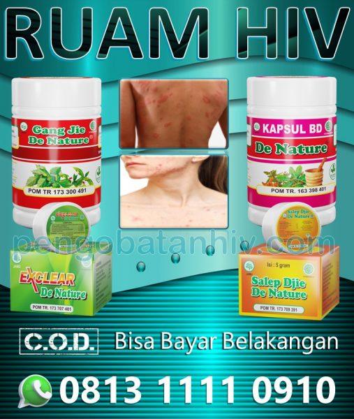 Ubat Hiv Aids Rash Herba Untuk Ruam Merah Gatal Muncul Di Kulit Tangan Leher Badan Wajah