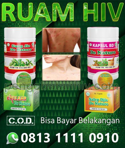 Obat Hiv Aids Herbal Untuk Ruam Merah Gatal Muncul Di Kulit Tangan Leher Badan Wajah Perih