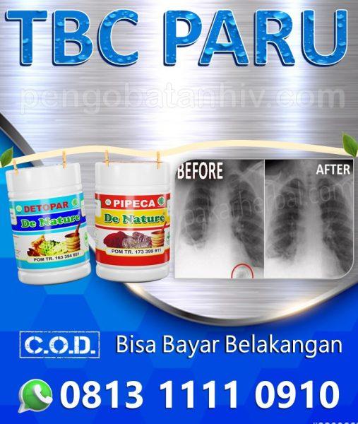 Ubat Untuk Penyakit Tibi Di Sabah Serawak